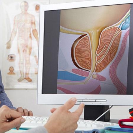 disfunzione erettile aiuta dopo lintervento chirurgico alla prostata