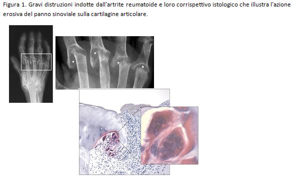 Artrite da pirofosfato di calcio
